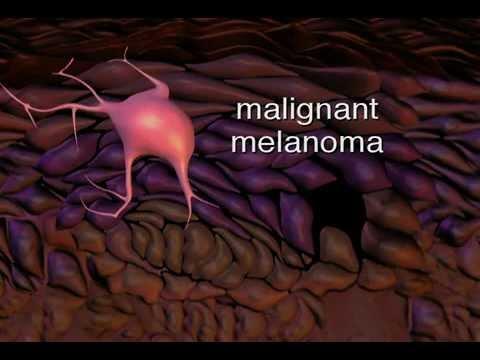 Su thrombophlebitis allatto di trattamento di donne incinto