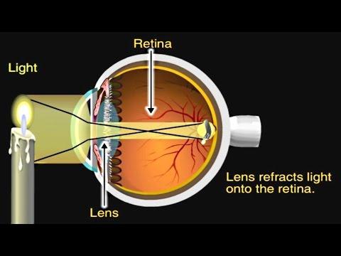 Hogyan lehet 100% -kal javítani a látást