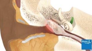 Glue ear | Health Information | Bupa UK