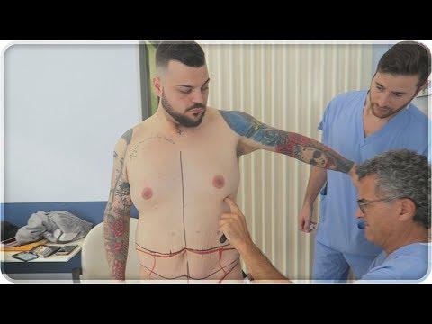 Tuberosità della prostata
