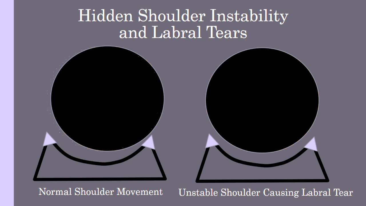 Stem Cell Therapy maxresdefault - Shoulder Labrum Surgery: Does It Work?