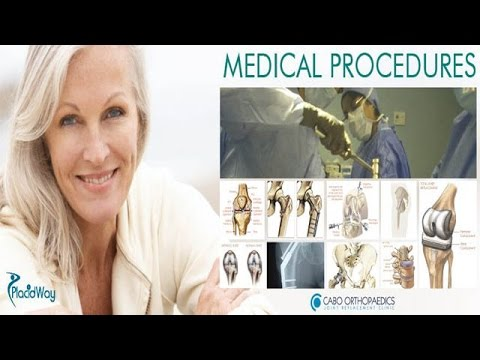 Orthopedic Surgery in Mexico | Top Joint Replacement Clinic