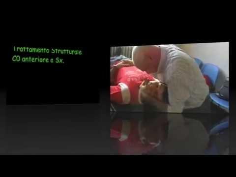 Lezioni di massaggio con osteocondrosi cervicale