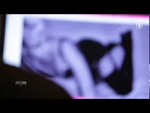Gebärmutterhalskrebs Erosion, ob nach dem Sex bluten