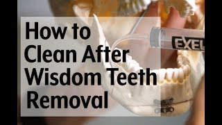 Post-op video instruction: How to clean with a syringe after wisdom teeth removal