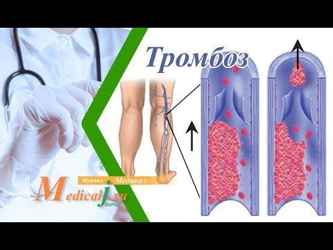 Тромбоз глубоких вен ног. Причины, симптомы и лечение