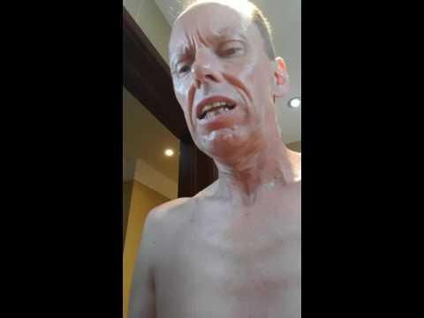 Seborrheic dermatitis nagiging sanhi ng parasitiko
