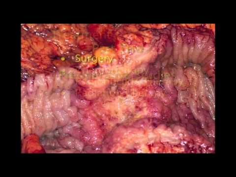 Laparoscopic Colectomy and Cholecystectomy in Treating Neuroendocrine Tumors