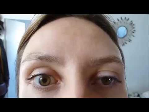 Bezoperatsionnouju podtyajkou les peaux de la personne par les 3d-mésofils