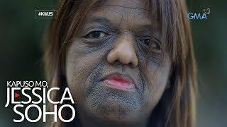 Kapuso Mo, Jessica Soho: Ang misteryosong sakit sa balat ni Bernadette