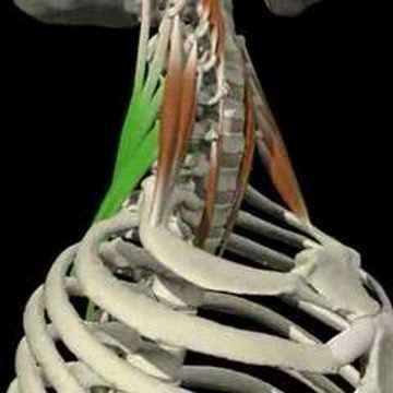 Curvatura di spina dorsale su mkb 10