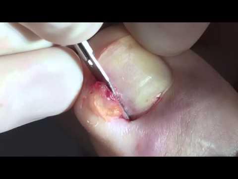 El tratamiento contra los fosos sobre las uñas