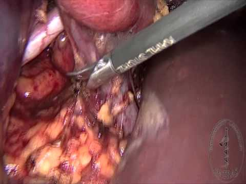 Partial Nephrectomy - Vessel Clamping