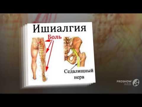 Увеличены коленные суставы