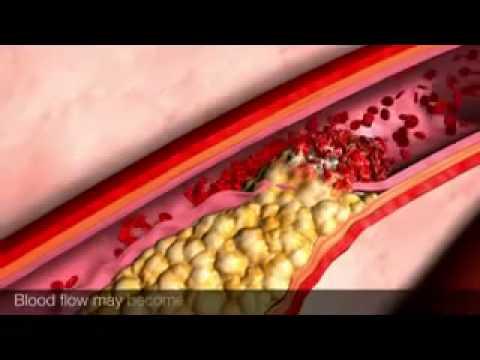 Trombosi e i suoi sintomi