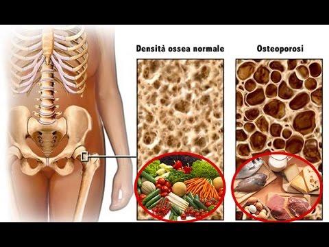 Come guarire in fretta linfiammazione dellarticolazione del ginocchio