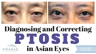 Congenital Ptosis in Asian Eyes - the Importance of Diagnosis by an Eyelid Specialist