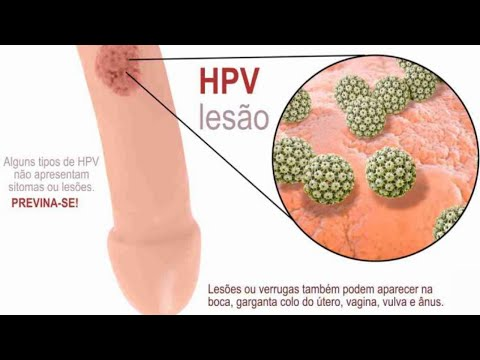 Intraductal papilloma cancer risk