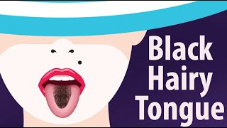 Black Hairy Tongue: Causes and Treatment