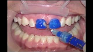 Dental implants cost and dental implants in Turkey 00905315897055