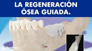 Regeneración ósea guiada © - Clínica Dental Pardiñas