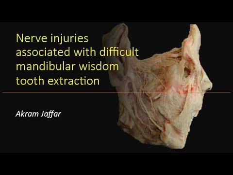 Uszkodzenia nerwów związane z powikłaną ekstrakcją zębów mądrości