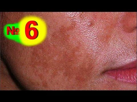 Что помогает избавиться от пигментных пятен на лице