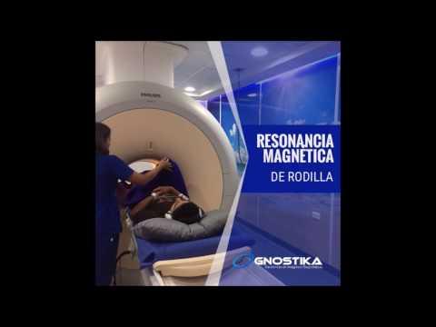 Que tendrá resonancia magnética de la rodilla