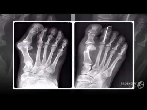 Болит большая косточка у большого пальца ноги
