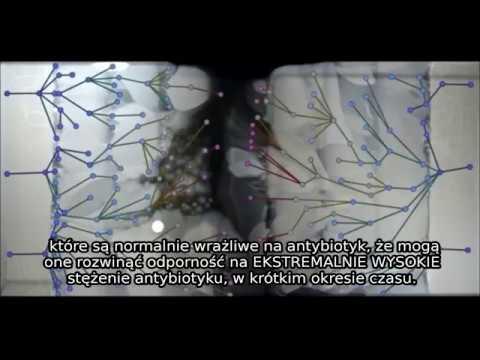 Zapalenie gruczołu krokowego u mężczyzn dotyka kobiety