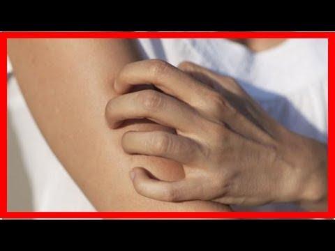 Le traitement des helminthes des dindonneaux