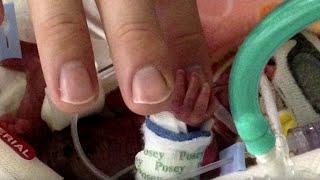 Врачи затаили дыхание, когда впервые увидели новорожденную... Чудо!