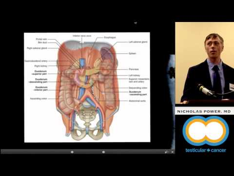 Ovarian cancer treatable