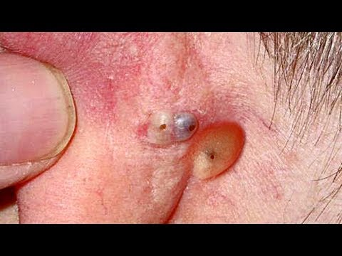 Ear Blackheads of All Shapes & Sizes!