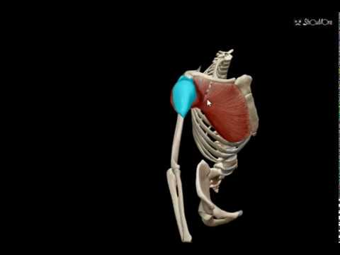Reemplazo de cadera