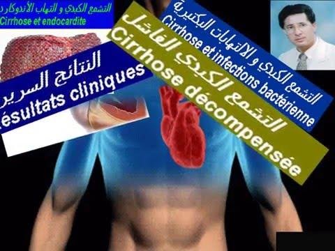 La douleur dans le cœur et lhypertension
