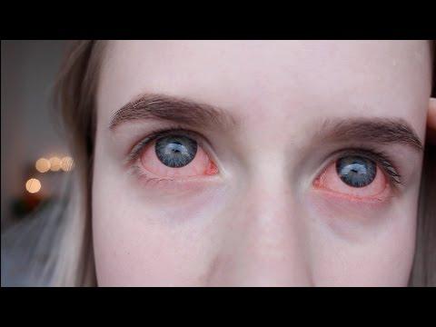 Что такое глазное давление последствия