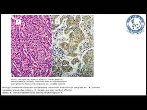 Hepatic cancer prognosis