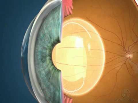 Герпес в глазу пропало зрение