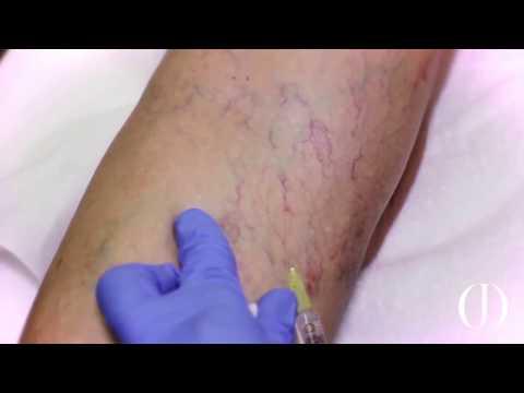 Le mani di eczema si sono gonfiate
