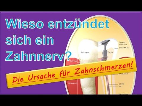 Zervikale Osteochondrose 1 Grad Gymnastik