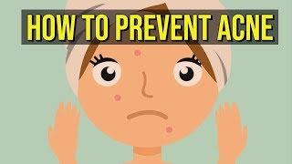 How To Prevent Acne 5 QUICK TIPS