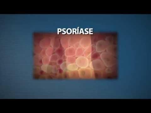 A dermatite de atopic que não pode ser feita