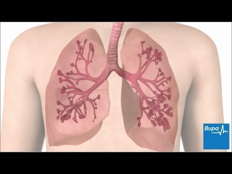 Video How an asthma attack occurs