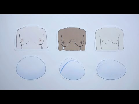 El aumento del pecho los cirujanos las revocaciones