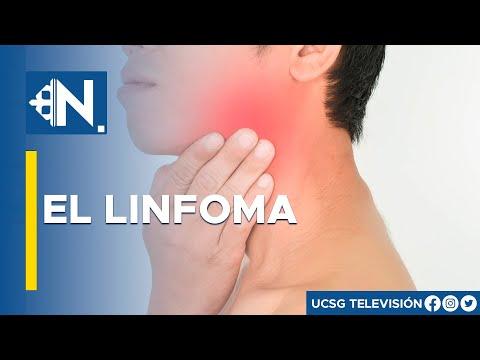 Vitaprost regime forte - Trattamento di adenoma prostatico polline dapi