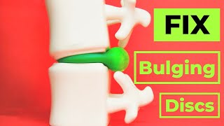 How to Fix A Bulging Disc -No surgery