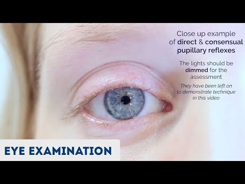 Test ocular bun