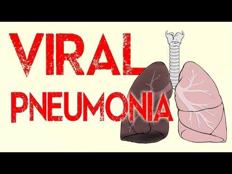 Video Viral Pneumonia