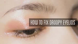 How to Fix Droopy Eyelids